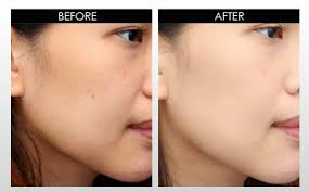 skillcare-before-after